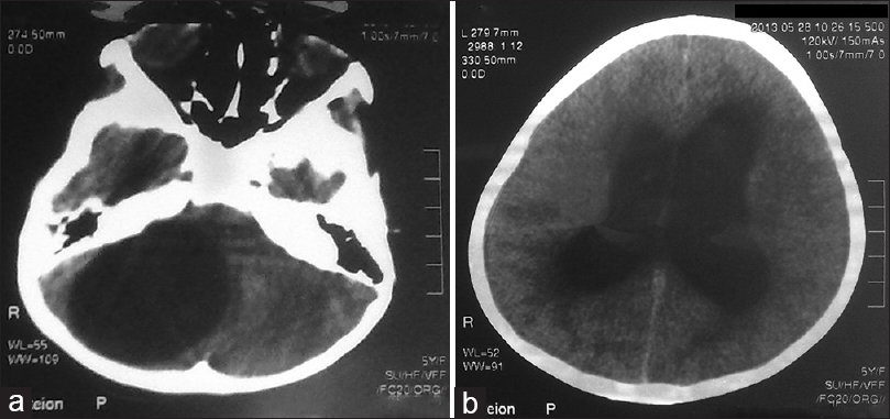 Figure 1: Computed tomography scan showing (a) posterior fossa cyst (left), (b) marked ventriculomegaly and periventricular extravasation (right)