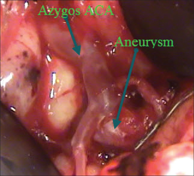 Figure 2: Intraoperative photograph showing azygos ACA and aneurysm at its bifurcation