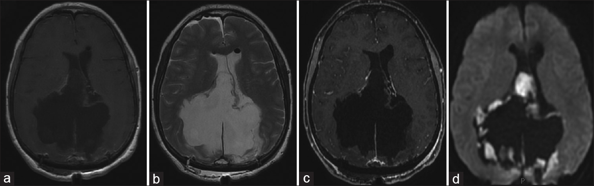 Figure 2: Postoperative MRI. Axial T1-weighted (a), T2-weighted (b), T1-gadolinium-enhanced (c), and DWI (d) images showing the subtotal resection of the lesion. DWI images show the residual pathological tissue around the surgical cavity, mainly in the mesial temporal lobe bilaterally and perimesencephalic cistern. MRI – Magnetic resonance imaging; DWI – Diffusion-weighted imaging