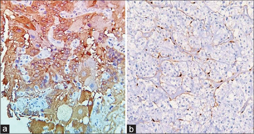 Figure 5: (a) Immunohistochemical staining for neuron-specific enolase, neuron-specific enolase highlight neuroendocrine, and ganglion cell components. (b) Immunohistochemical staining for S-100 is positive in spindle/interstitial cells (IHC, ×400)
