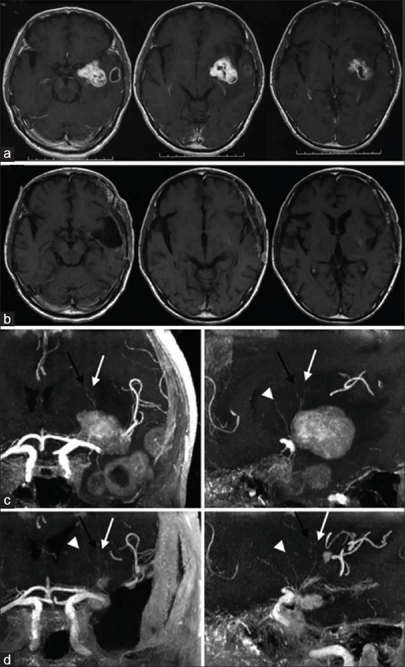 Figure 2: Lenticulostriate vessels and left operculoinsular glioblastoma demonstrated by contrast-enhanced magnetic resonance imaging. Preoperative (a and c) and postoperative (b and d) magnetic resonance imaging sequences. a: Axial T1-weighted magnetic resonance imaging sequences demonstrate a contrast enhancing left insuloopercular glioma with microcystic cavitation. b: Axial T1-weighted magnetic resonance imaging sequences demonstrate successful gross total resection of left operculoinsular glioblastoma. c: Coronal (left) and sagittal (right) views of three dimensional 3 Tesla time of flight magnetic resonace imaging sequences demonstrate the lenticulostriate vessels located at the anteromedial aspect of the tumor. d: Coronal (left) and sagittal (right) views of three dimensional 3 Tesla time of flight magnetic resonance imaging sequences demonstrate successful preservation of the lenticulostriate vessels following tumor resection. Black arrows =  first perforators; white arrows = second perforators; white arrowheads = third perforators. Modified with permission from Saito <i>et al</i>., 2009