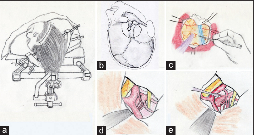 Figure 1: Orbitozygomatic craniotomy for basilar tip aneurysms. Patient positioning and incision (a) and place of burr holes (b) are demonstrated, Sylvian fissure is dissected (c) and the aneurysm is encountered (d), cisterns are opened by microsurgical techniques to expose the aneurysm (e). Please refer to the text for more technical details