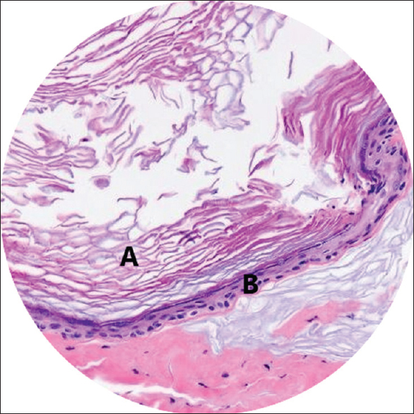 Figure 1: H and E staining (4X) cerebellopontine angle epidermoid. A: Keratin flakes and B: Stratified squamous epithelium